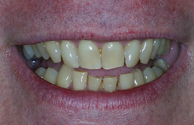 Discolored Teeth in South Miami | South Miami Discolored ...